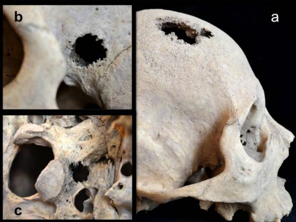 Lesions and holes in skull of Siberian remains